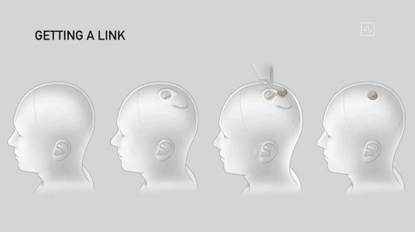 رقائق الدماغ