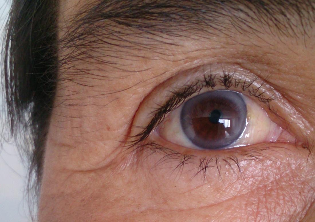 علامة في العين تشير إلى مدى صحة القلب لدى الشباب